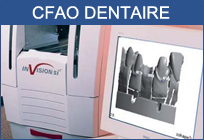 cfao dentaire